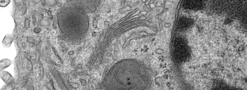 Transmission Electron Microscope image of cell cytoplasm with golgi