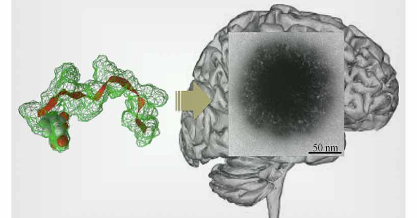 Self-assembly of a peptide to 'hairy-like particles' that target the brain on intravenous injection