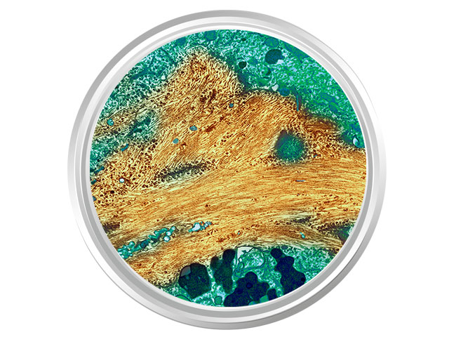 Cells in a Petri dish.