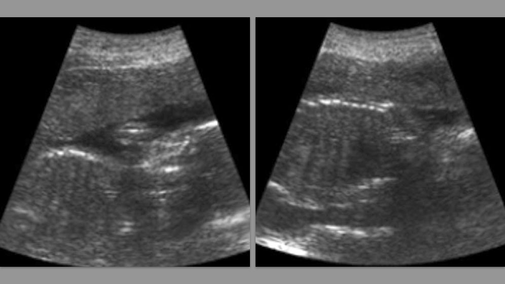 Results from the clinical trials: Sagittal and abdomen. 25 weeks - Left: sagittal; Right: abdomen.